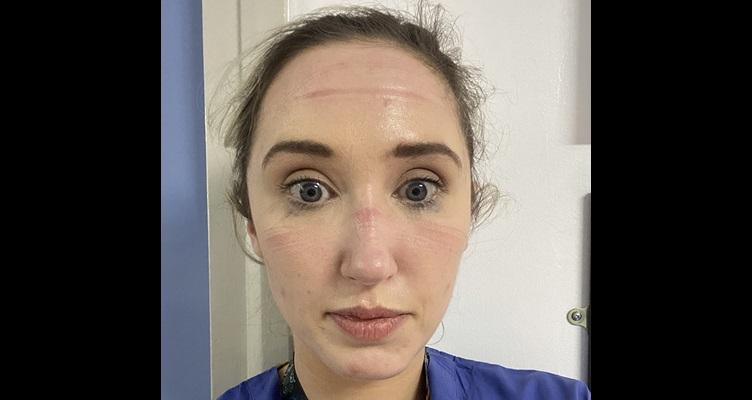 Natalie-McEvoy-facial-injuries